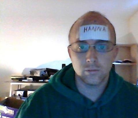 hanna-poisonivylul-poison-ivy-forehead-victim-9